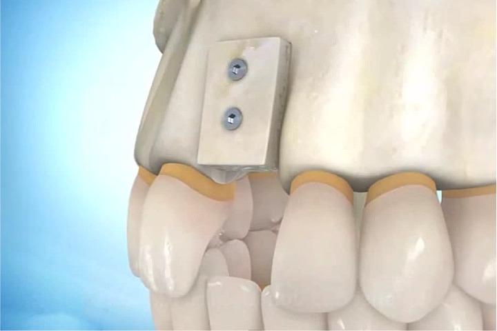 enxerto osseo para implante implart
