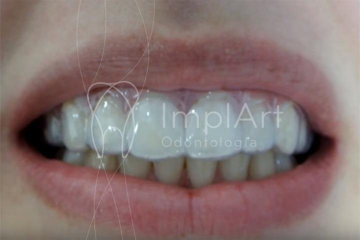 clareamento dental em casa com gel