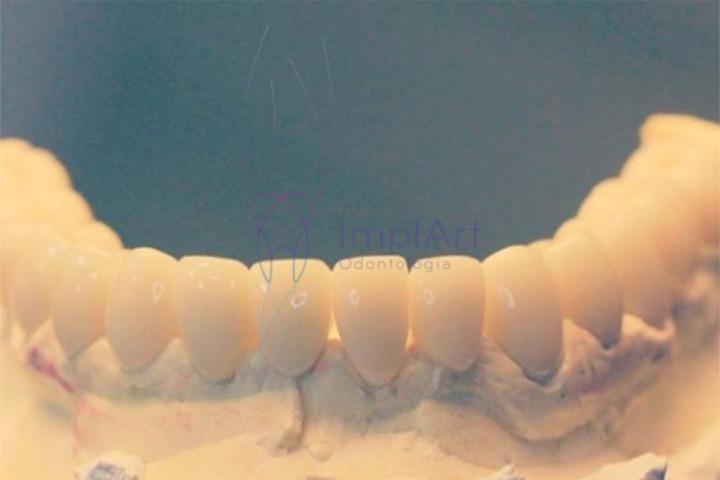 protese dentaria fixa preço