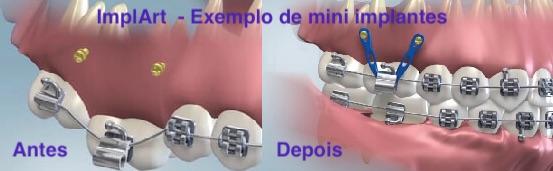 Antes e depois de implante dentario mini