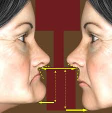 dimensão vertical