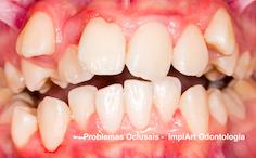 oclusao dentaria