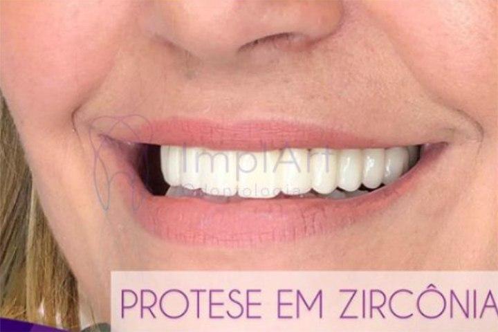 protese fixa em porcelana implante dentario