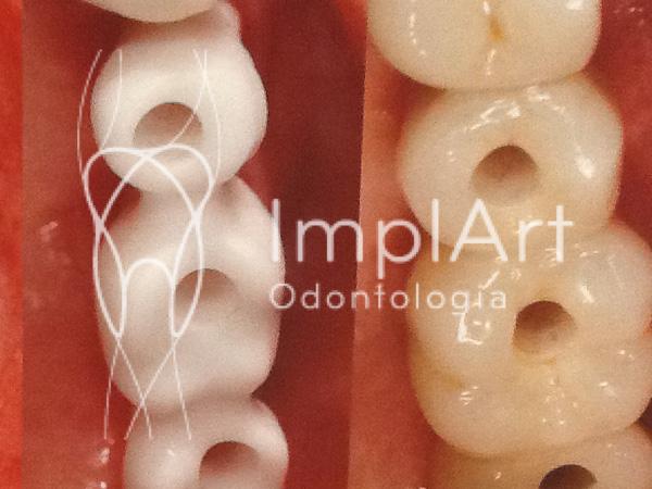 coroa de dente de zirconia