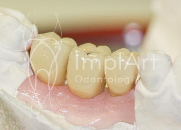 Protese metaloceramica para implantes
