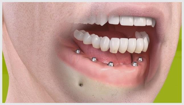 implante total implante completo implante de todos os dentes