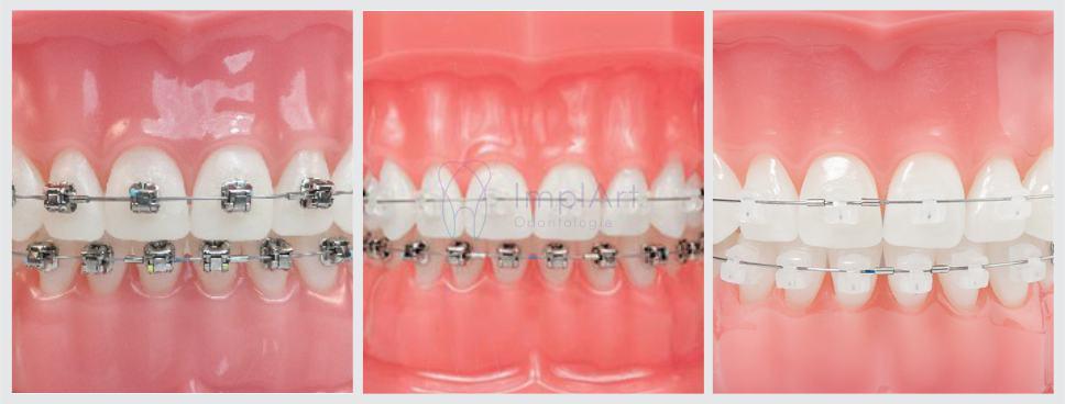 aparelhos ortodônticos modernos e estéticos tratamento ortodôntico rápido aparelho ortodôntico estético