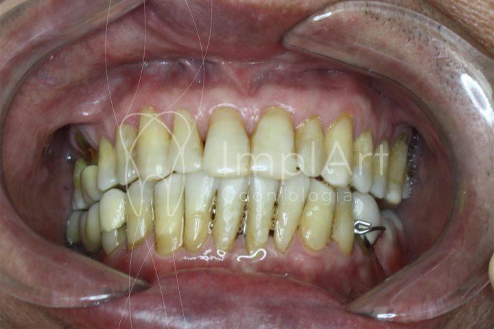 doença periodontal perda óssea