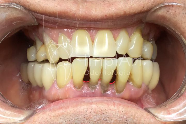 doença periodontal espaço entre dentes blackspace dental dentes inclinados perda óssea e retração gengival
