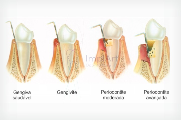 fases da doença periodontal