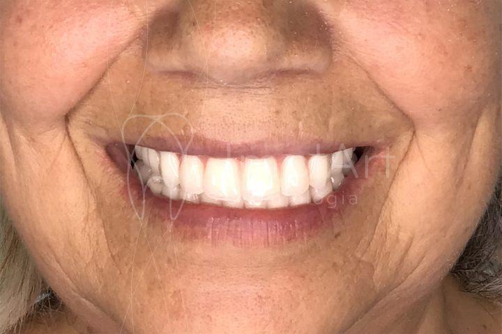 implantes de todos os dentes