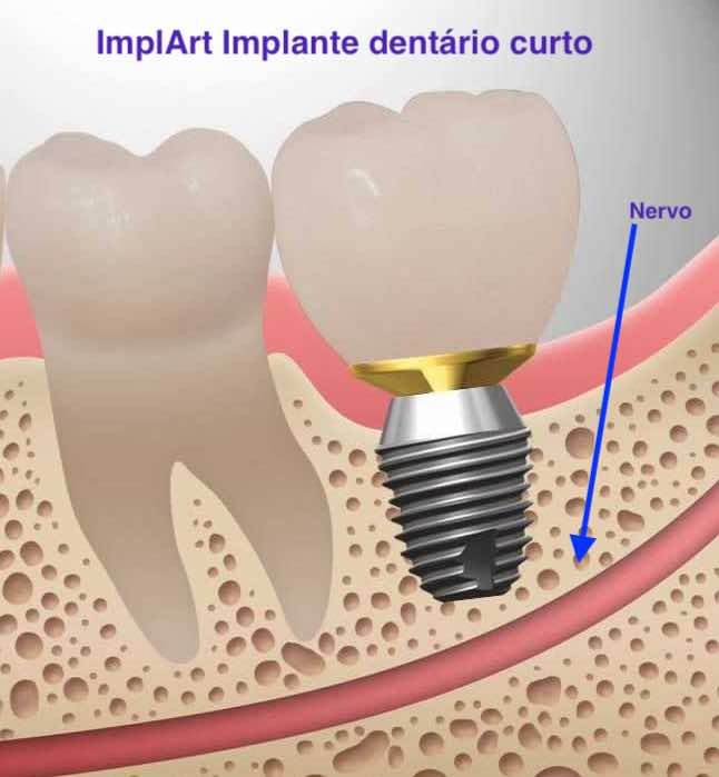 implante dentario menor