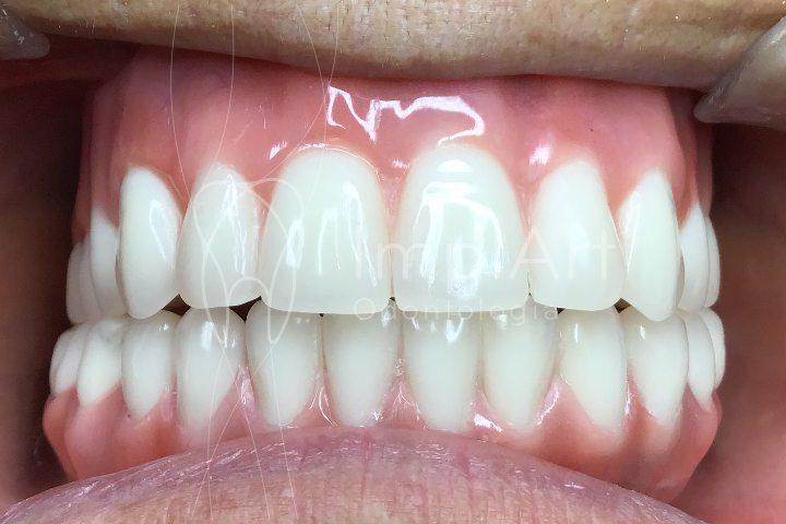 protese fixa metaloplastica implante dentario