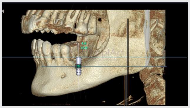 tomografia computadorizada para planejamento de implantes