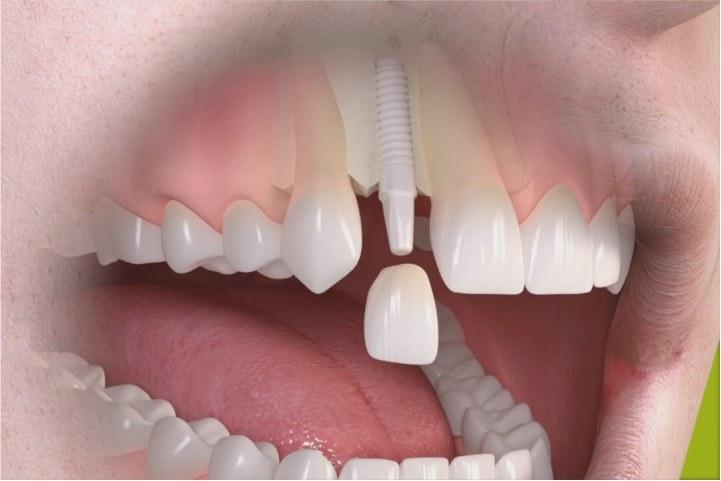 implante dentario de ceramica implante dentario branco