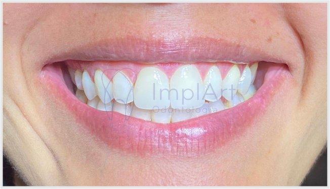 coroa de zircônia translúcida para os dentes da frente