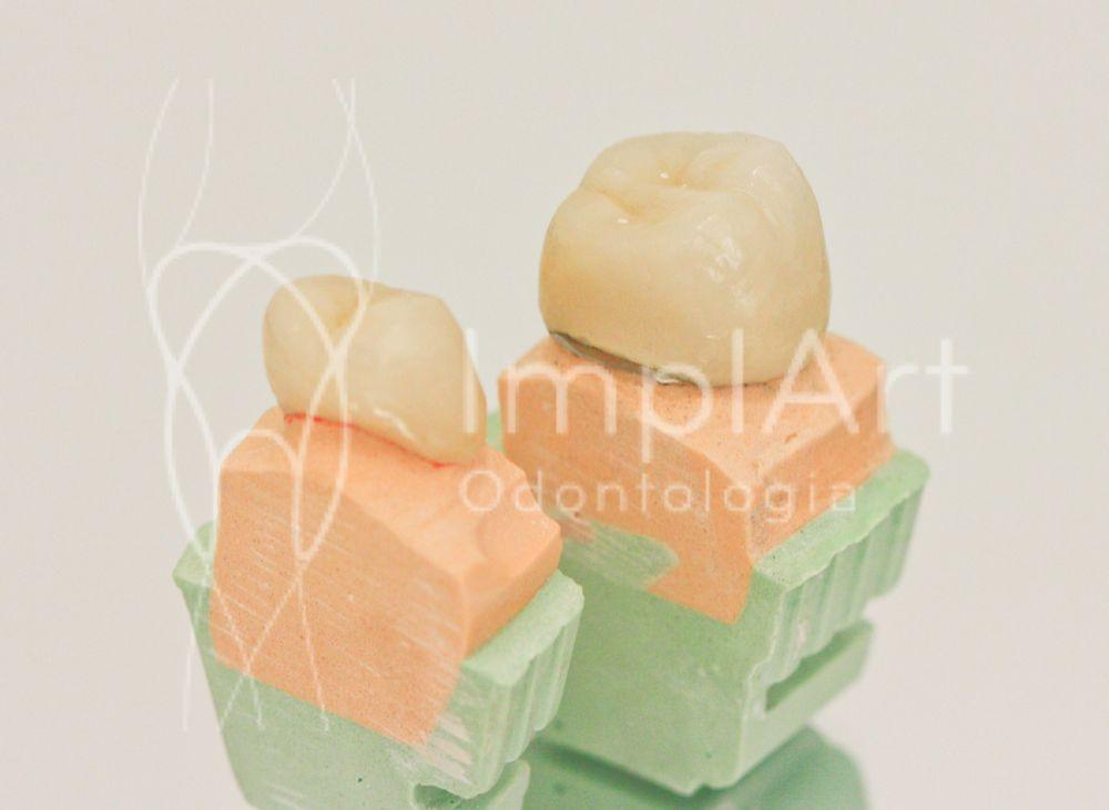 Coroa para reconstrução dental com ou sem metal