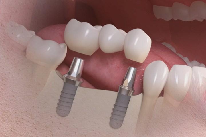 implante parcial ponte dentaria fixa
