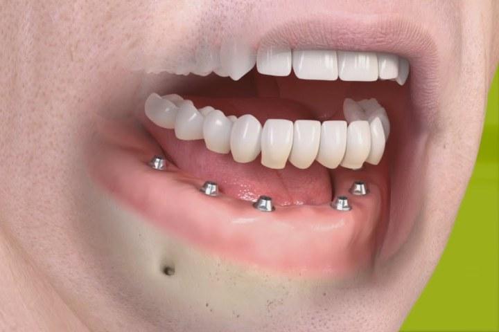 implante total protese dentaria fixa