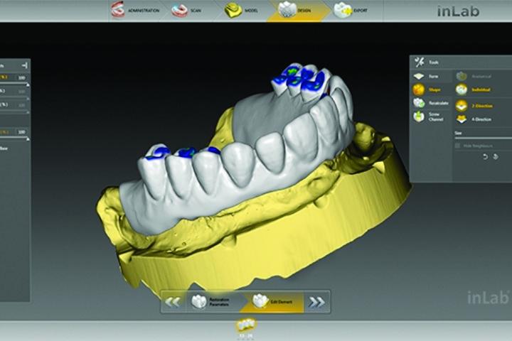 projeto computadorizado de protese dentaria