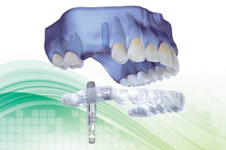 cirurgia de implante guiada por computador para cirurgia sem dor