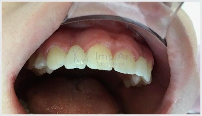 coroa_fixa_sobre_implante_35kb