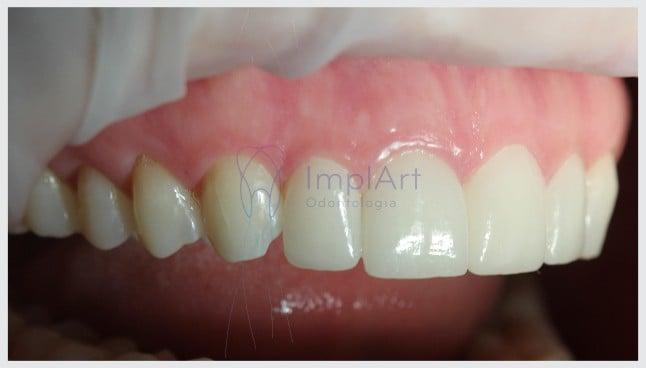 lentes_de_contato_dental_lossy