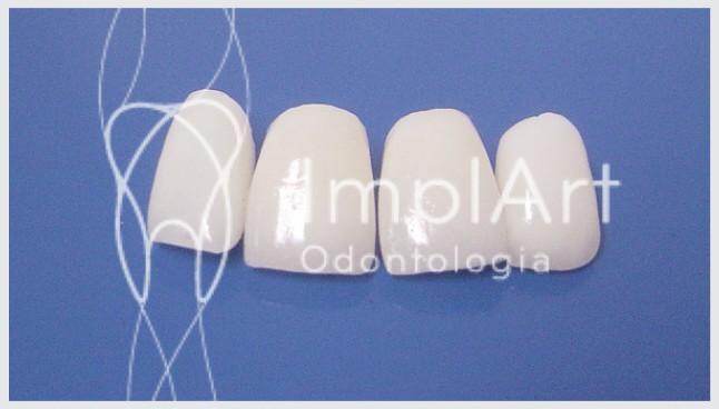 facetas em porcelana para os dentes da frente