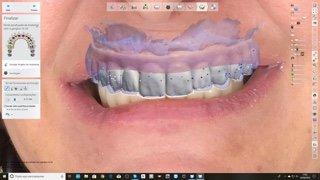 prótese dentária de zirconia projeto