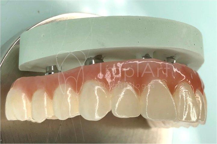 protese fixa em implantes protese dentaria de zirconia total reposicao de todos os dentes