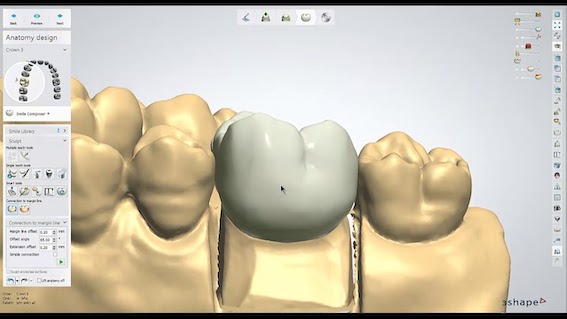 coroa dentaria em um dia