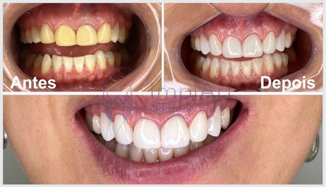 lente_contato_dental_antes_e_depois_46kb
