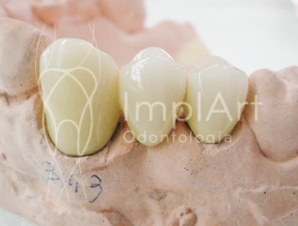 protese fixa protese metaloceramica