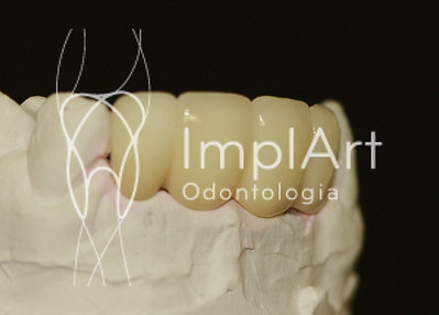 protese fixa nos dentes da frente