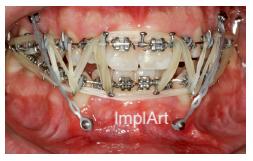 erros em aparelho dentario