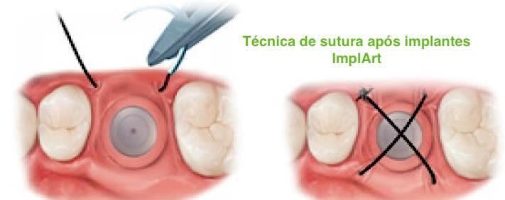 implantes dentários e pontos