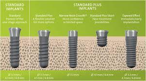 implante dentario mais curto short