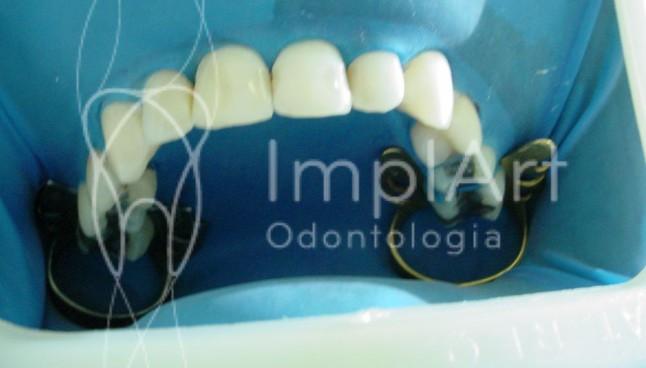 clareamento dental a laser depois