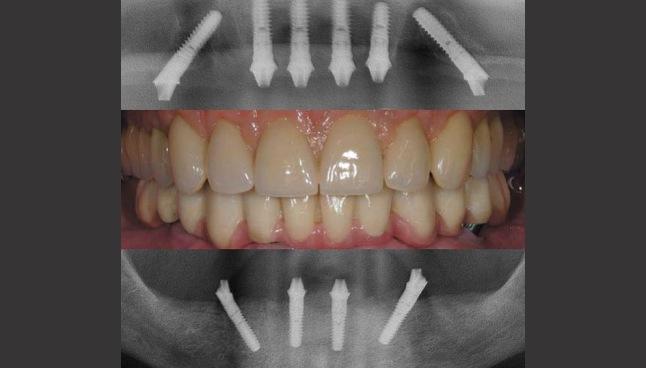 Carga_imediata_implante_total_50kb