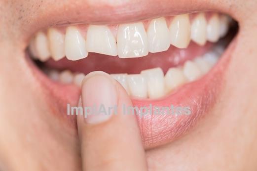 fratura dental