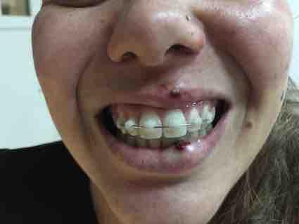 perda de dente acidente
