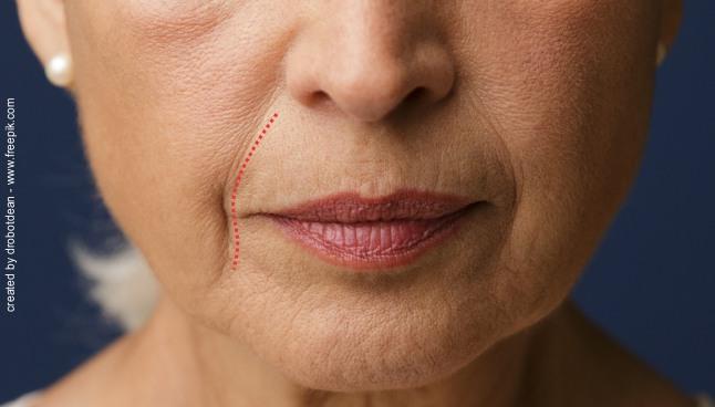 preenchimento do bigode chines dentista