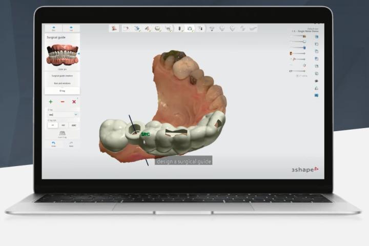 cirurgia Guiada de implante