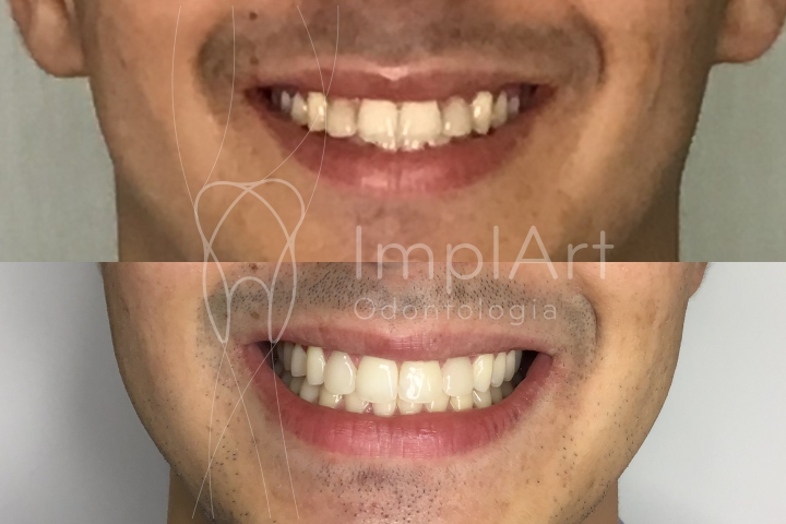 fotos de antes e depois de colocar lentes de contato dentais e clareamento