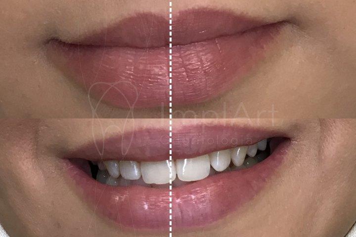 assimetria do sorriso assimetria labial