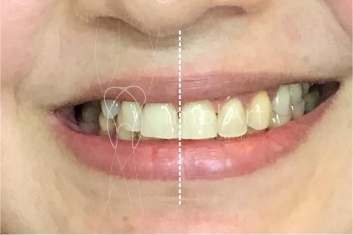 assimetria na abertura da boca