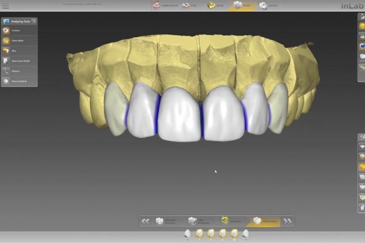 projeto computadorizado de coroas dentarias para repor dentes da frente