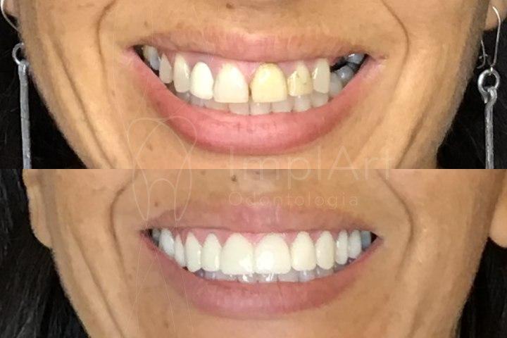 fotos de antes e depois de coroas sobre implantes dentarios lentes dentais