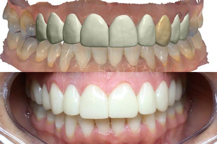 planejamento digital do sorriso e tratamento finalizado