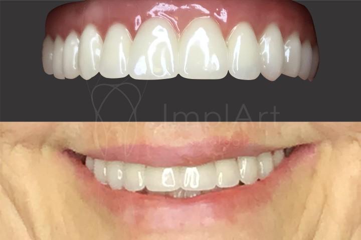 reabilitação oral prótese total fixa implantes dentários